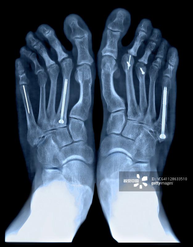影有关的场景 跖骨 动物脚趾 色彩增强 破坏 骨折 坏掉的 人体 汽车故障