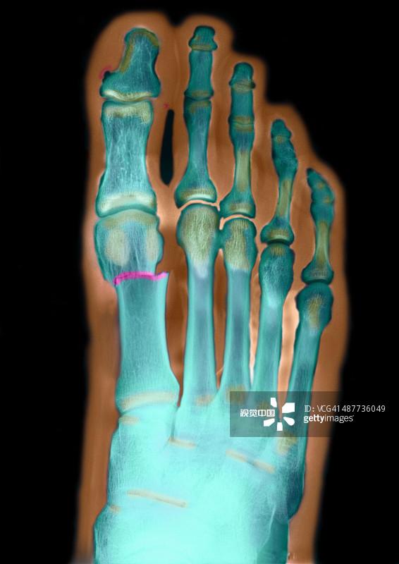 人物速写教程之肢体解剖分析