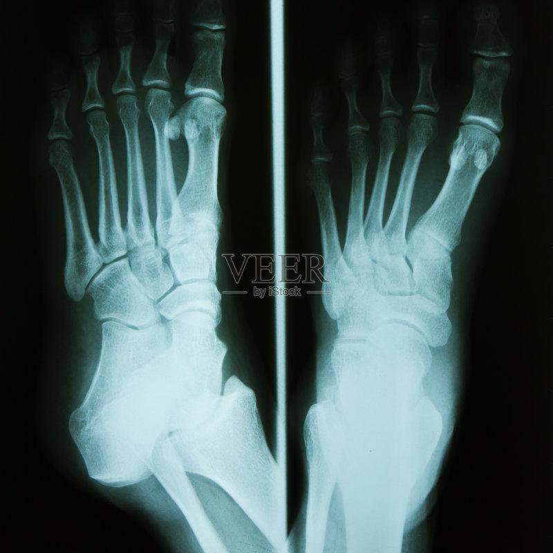 跖骨-跎骨 人 腓骨 人类脚趾 生病 足部骨骼 X光 四肢 腿 胫骨 骨骼 物理