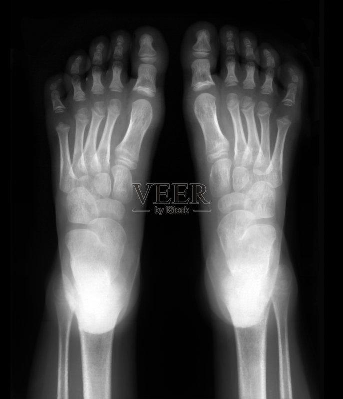 人体 黑色 跖骨 尸体解剖 健康保健