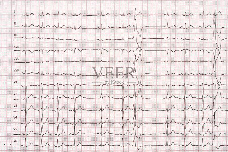 图纸-考试 人类心脏 生病 设备用品 情绪压力 图 频率 身体检查 药 挥手