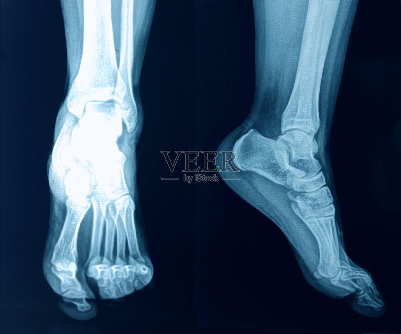 跖骨-人 人类脚趾 生病 X光 职业治疗 四肢 腿 关节炎 骨骼 物理压力 足