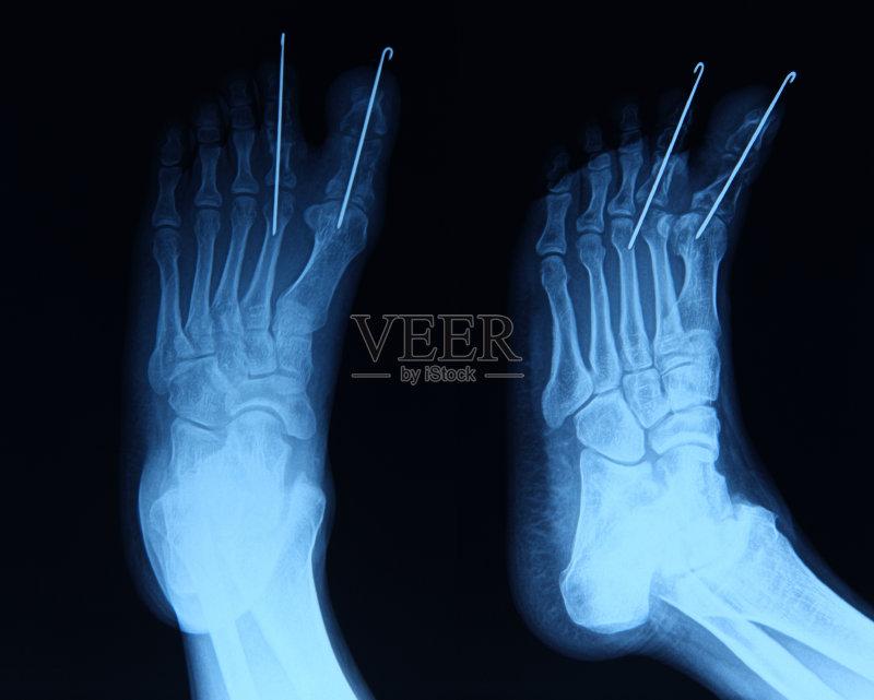 骨骼 技术 跖骨 图像特效 人类骨架 粉碎性骨折 踝 骨折 腓骨 胫骨 人