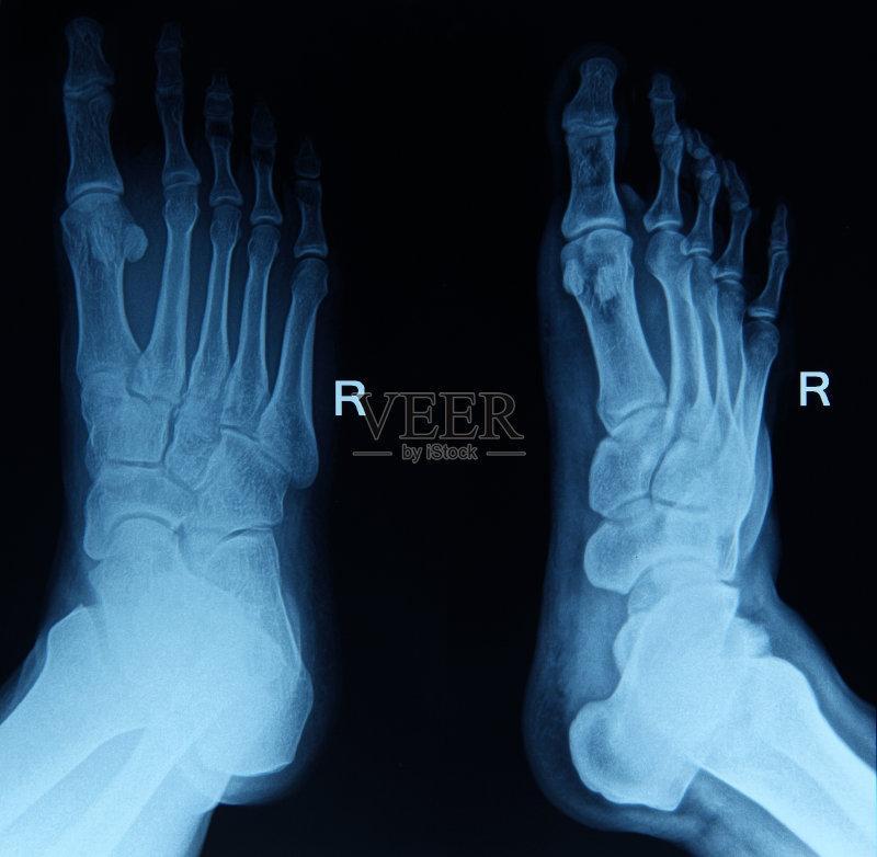 体结构 人体 跖骨