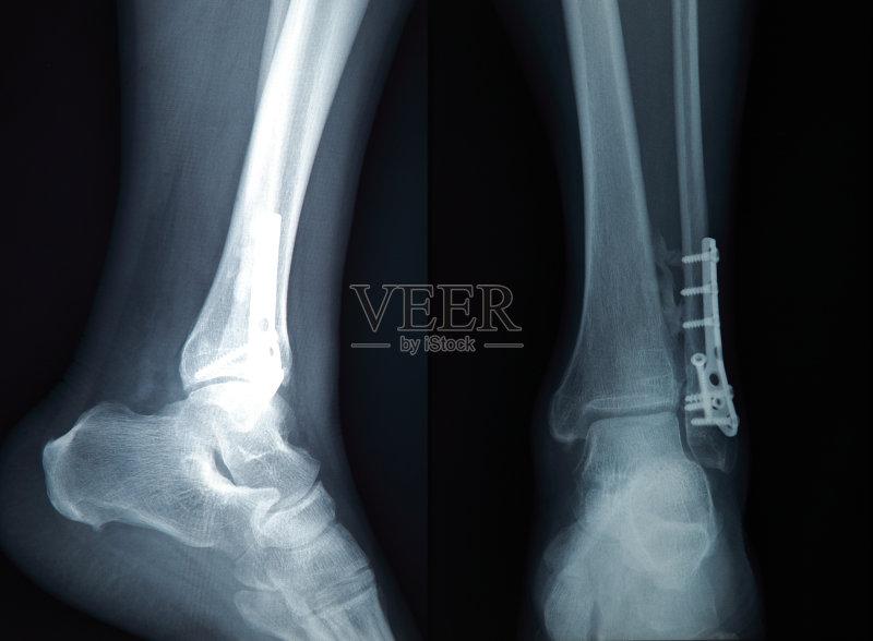 人体 胫骨 跖骨 成年人 人工膝关节 健康保健